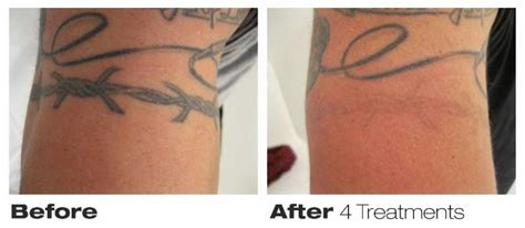 how successful is tattoo removal precision laser removal opening hours 76