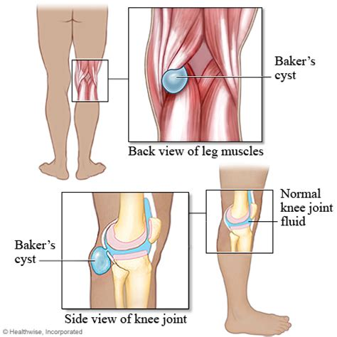 Planters Cyst by Baker S Cyst Physio 2012