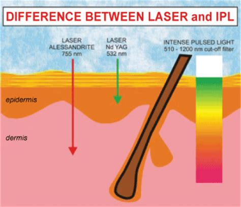 Ipl Light by Ipl Pulsed Light Treatments What Can They Do For Me Sei Med Spa