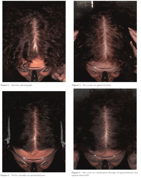 spironolactone and female pattern hair loss hair loss pattern pcos hairsstyles co