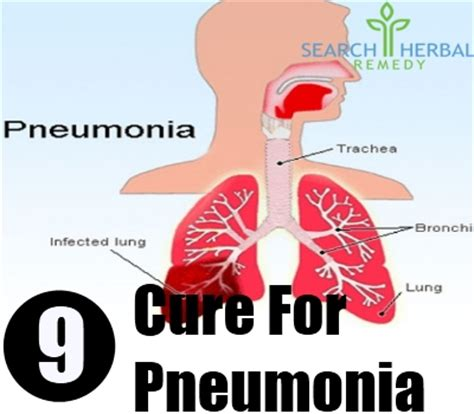 how to treat pneumonia at home 9 cure for pneumonia how to cure pneumonia naturally