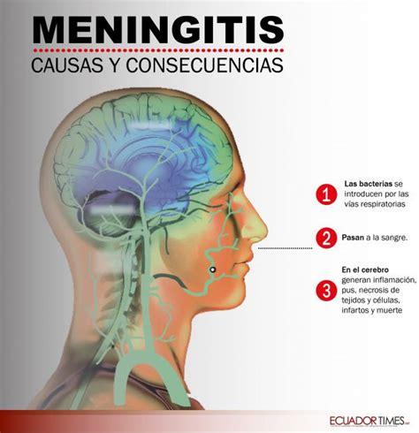 preguntas tontas los 40 principales diario21 tv qu 233 es la meningitis y c 243 mo se contagia