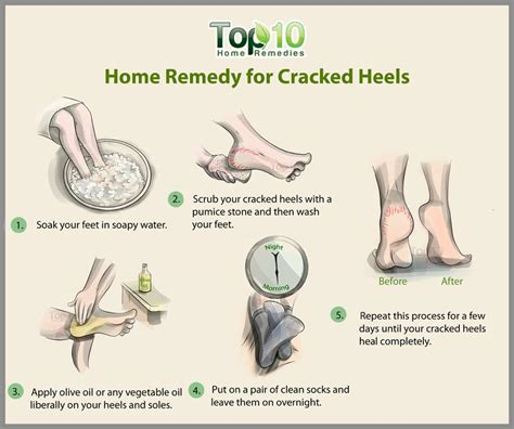 home remedies for cracked heels top 10 home remedies