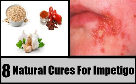 8 cures for impetigo how to cure impetigo