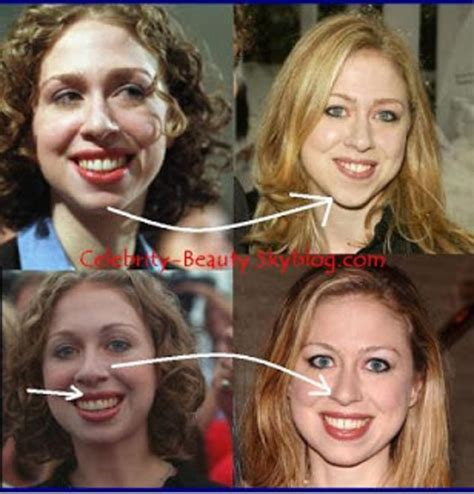chelsea teen mom nose job bill clinton not chelsea s biological father