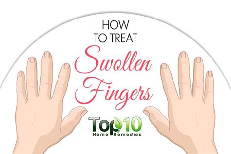 How To Relieve Swelling After Section by How To Treat Swollen Fingers Top 10 Home Remedies