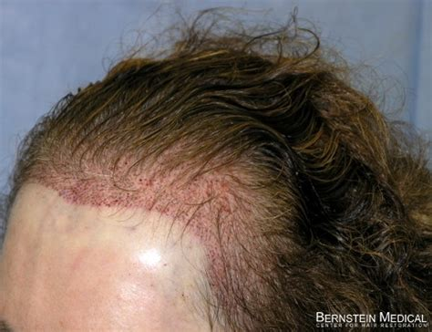 hair thinning at temples and top temple hair transplant hairstylegalleries com