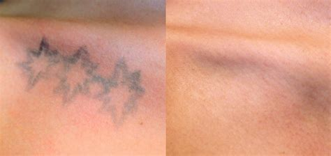 smooth laser tattoo removal picosure 174 removal avaliani md cosmetic