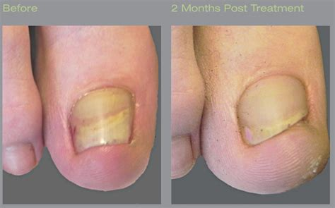 best treatment for foot fungus laser treatment for toenail fungus onychomycosis