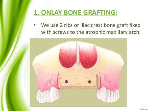 vestibuloplasty indications pre prosthetic surgery