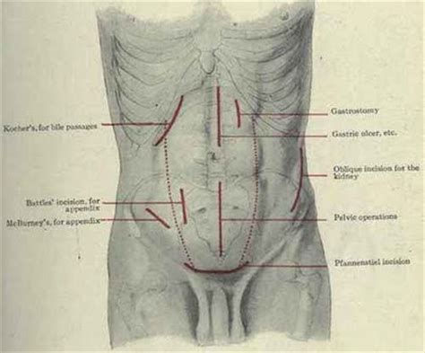 c section incision types the gallery for gt cesarean section incision types