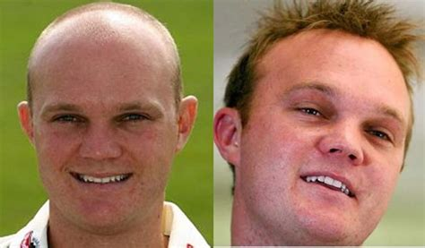 10 cricketers who went for hair transplant cricket country 10 cricketers who went for a hair transplant