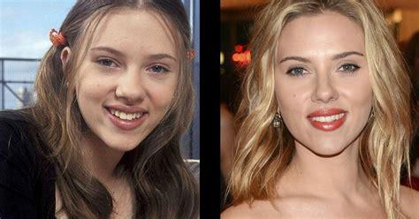 imagenes de narices raras 11 famosos que se operaron la nariz y cambiaron
