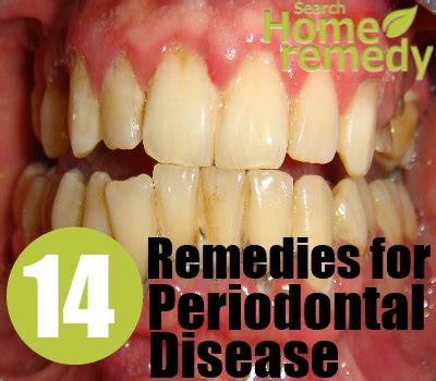 periodontal disorders