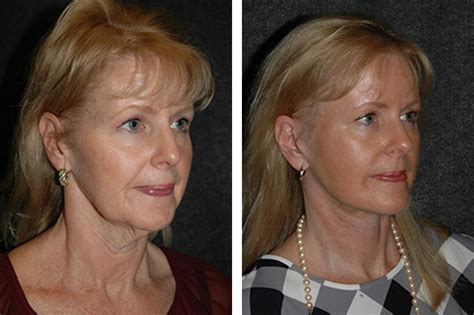 what hairstyle for an oval face with jowls hair cuts for sagging jowls mini face lift face lift