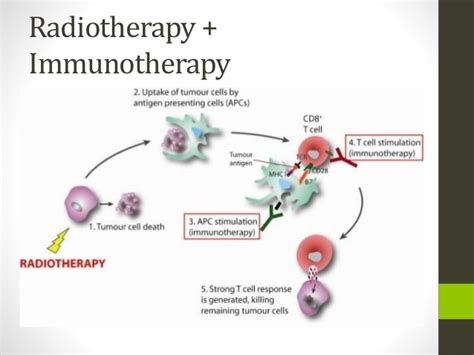 immunotherapy and radiation a new cancer radiotherapy