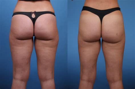 liposuction inner thighs liposuction liposuction lower abdomen inner thighs