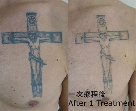 tattoo price calculator skinlab laser removal hong kong 香港激光洗紋身中心