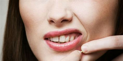 Pelembab Sariayu Untuk Kulit Berjerawat choice pelembab aman untuk wajah berjerawat
