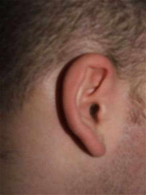 my right ear at parts