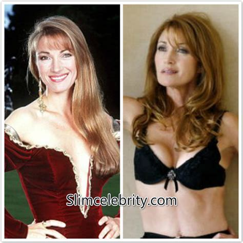 breast lift before and after photos plastic surgery jane fonda breast implants before and after hot girls