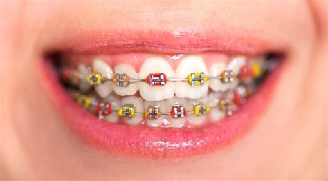 what color should i get my braces modern contemporary what color should i get my braces
