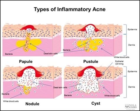 diagram of a pimple blind pimple diagram blind pimple diagram anatomy organ
