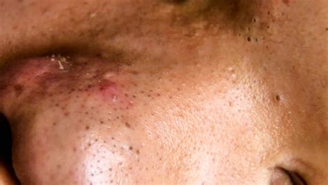 pictures of pimple on human skin macro csp9188528 search stock photos images human skin mole in up shoot with macro different type of skin mole check
