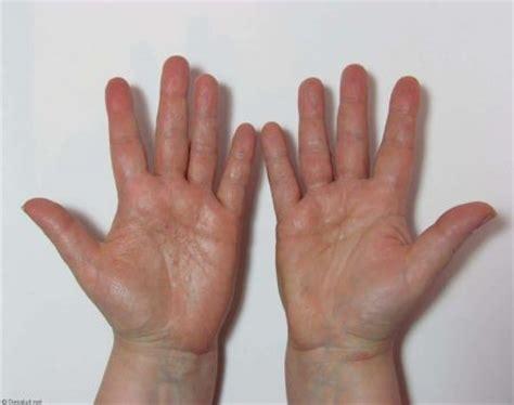 las oscuras manos del 8467915366 tratamiento para la dishidrosis dermatitis en manos y pies tu blog de salud y vida