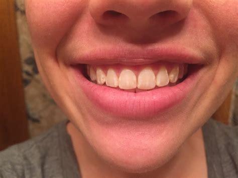 bays pirate teeth  adventure  tooth