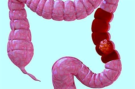 aderenze intestinali alimentazione blocco intestinale durante la gravidanza cause sintomi e