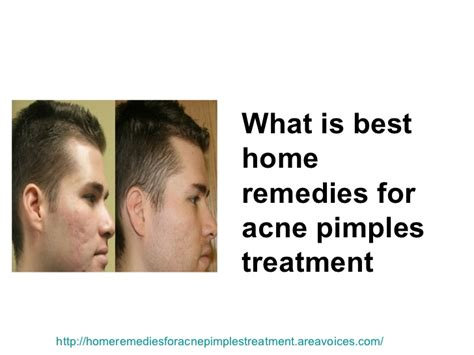 home remedies for acne pimples treatment