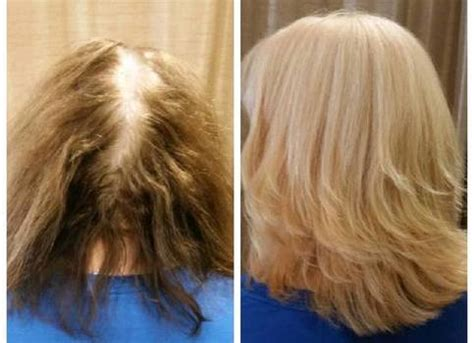 hair extensions for thin crown hair color correction salon services hair salon of tucson
