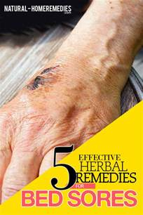 bed sores treatment bed sores herbal remedies treatments and cures natural