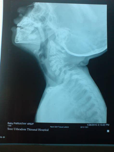 something stuck in s throat image gallery globus esophagus