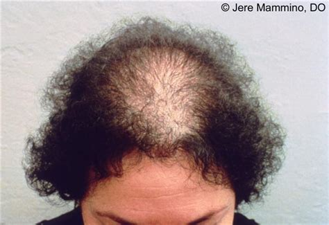 pattern of hair loss female pattern hair loss american osteopathic college of