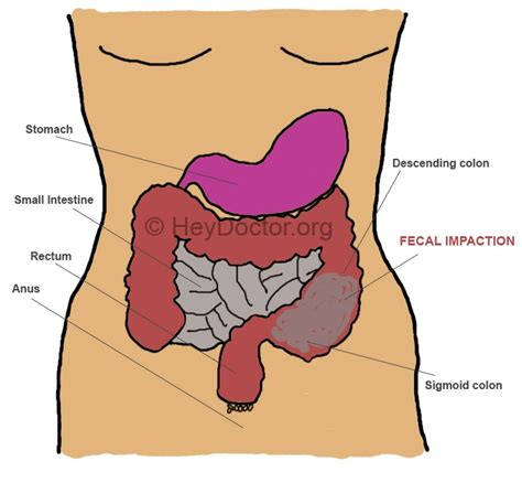 image gallery impacted colon diagram