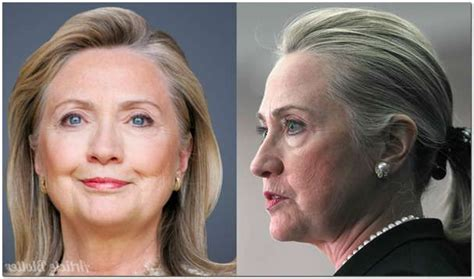 has hillary clinton had cosmetic work done the 25 best hillary clinton plastic surgery ideas on