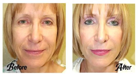 Is A Mini Lift A Facelift Alternative by Venice Fl Mini Facelift Facelift Mini Lift Venice