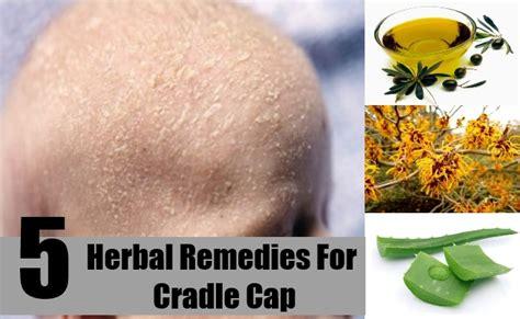 natural treatment for seborrheic dermatitis cradle cap cradle cap adult wild anal