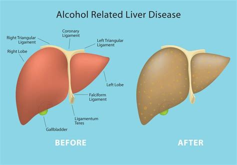 Stewart Has Liver Disease 2 by Related Liver Disease Vector Info Free