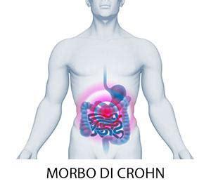 alimentazione e morbo di crohn morbo di crohn sintomi diagnosi alimentazione cura