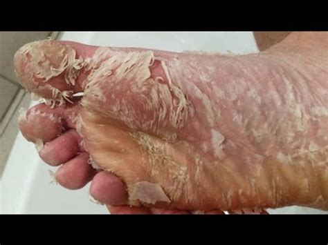 Shedding Skin by Peeling Skin Why So Appealing Cystbursting