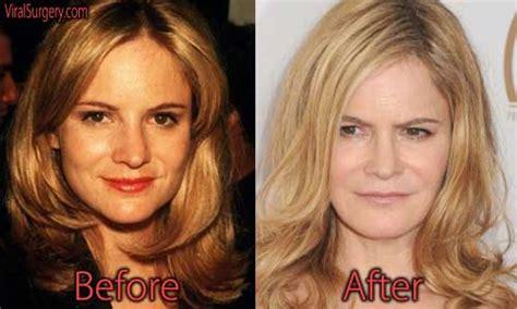 jennifer jason leigh joven jennifer jason leigh plastic surgery before and after