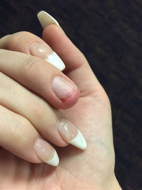 nail ripped my now infected cuticle nail bed where my acrylic nail ripped after a week of