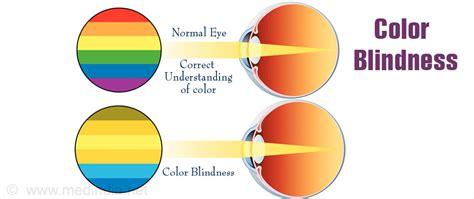 causes of color blindness color blindness types causes symptoms diagnosis