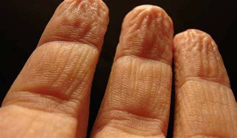 why do fingers wrinkle or prune in water