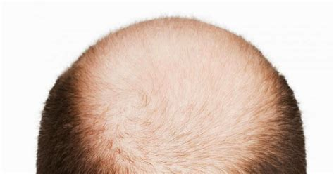 male pattern baldness meaning in urdu hair loss ganjapan desi cure herbal tips baldness