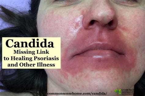 Stool Test For Candida Overgrowth by Candida Missing Link To Healing Psoriasis And Other Illness