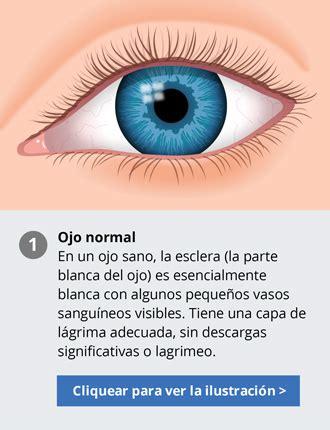 imagenes de ojos con orzuelos hechos sobre la conjuntivitis s 237 ntomas y tratamientos
